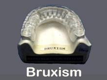Flexite MP Clear - Bruxism